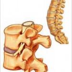Afectiuni ale coloanei vertebrale si felul in care acestea se rasfrang asupra intregului organism