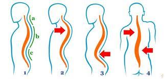 Afectiuni ale coloanei vertebrale | Bolile coloanei vertebrale