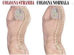 Afectiuni ale coloanei vertebrale | Afectiuni | Cifoza | Cifozele