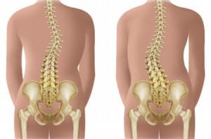 Deviatiile patologice ale coloanei vertebrale | Afectiuni scolioza | Scolioze